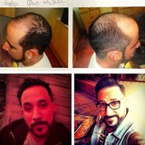 A.J.-McLean-reveals-hair-transplant